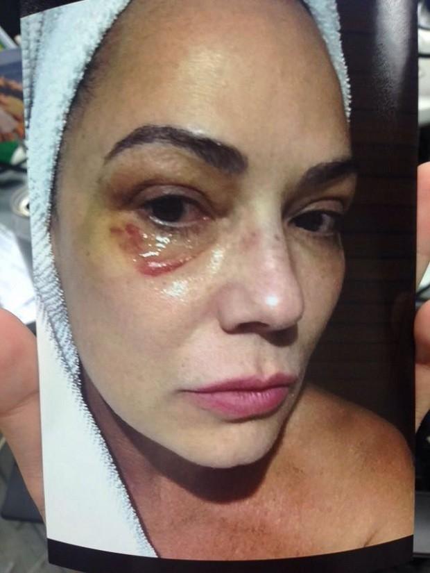Luiza Brunet após ser agredida pelo companheiro. Reprodução/Fantástico/Instagram